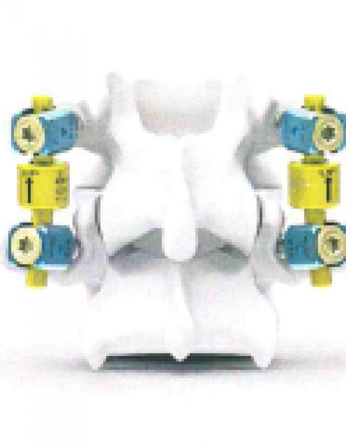 B-DYN System